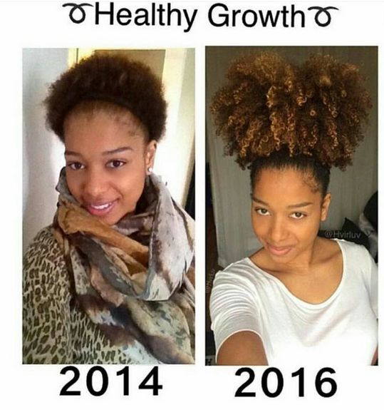 22 Inspiring Natural Hair Growth Journeys Black Girl