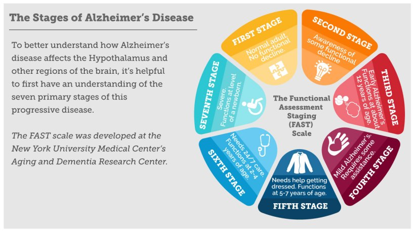 alzheimers_infographic