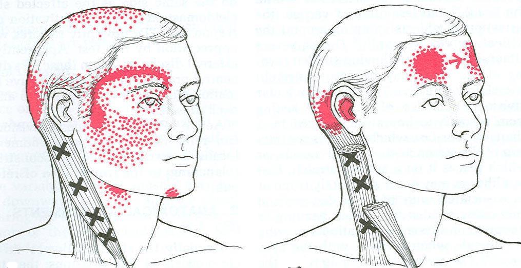 Diagram Of Head Pain Wiring Diagram