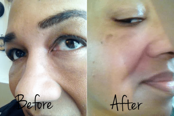 neutrogena rapid wrinkle repaid before and after
