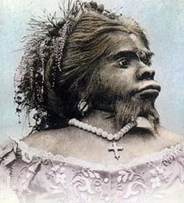【画像】「世界一醜い女性」の遺体、故郷へ・・・