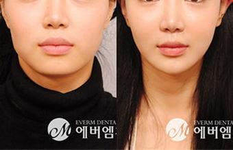 顔面整形の女子大生(22)、両エラを削る施術後に意識を失い9日後に死亡 - 韓国