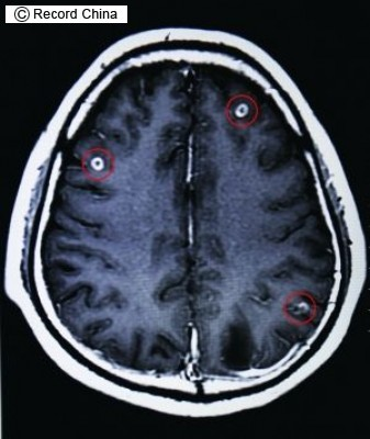 【恐怖】「ブタの生き血」が大好物の男性、脳内から19匹もの寄生虫が発見される