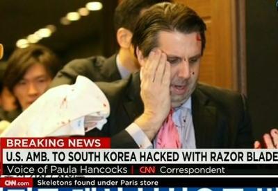 米・リッパート駐韓大使へのテロ事件、韓国ネット「国も国民も恥をかいた」「テロ犯は日本からお金でも貰ったのか?」「シャーマン発言に対し逆に謝罪しなきゃならない立場になった」