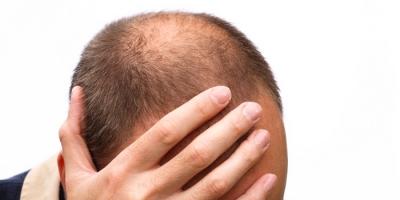 ハゲを「 頭頂部に毛髪が無い男」と表現した大分県警を訴えたいんだが・・・!