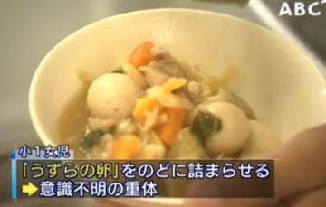 給食のウズラの卵がノドに詰まって意識不明になっていた小学1年生女児、入院先の病院で死亡 - 大阪