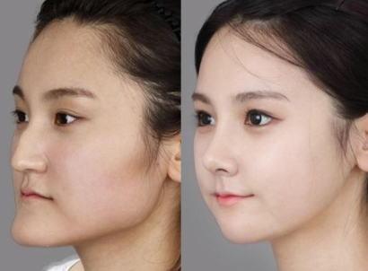 韓国・ソウルで鼻と顔の輪郭を直す整形手術を受けた20代の日本人女性、宿泊先のホテルで死亡 … 手術4日後、ブローカーが宿泊先にて発見