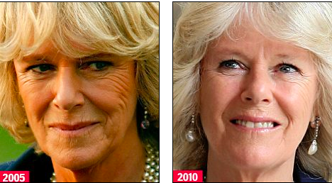 duchess of cornwall before and after
