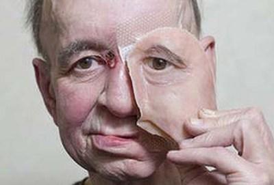 Impressão de pele 3D