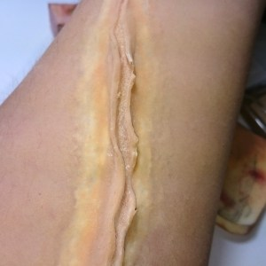 Applied Prosthetic