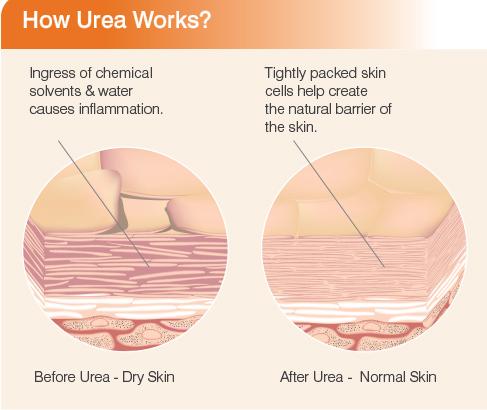 Dry Skin, Cracked Skin, Hard Calluses? \u2013 Feetlife Foot and nail care