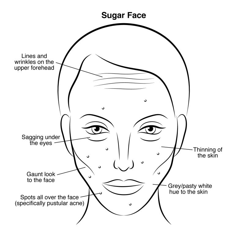 face health diagram