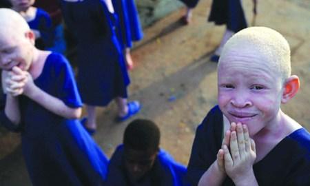albinisim in africa_blog.swaliafrica.com _