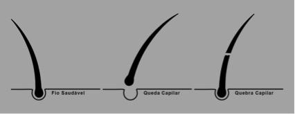 Quebra_fio_de_cabelo