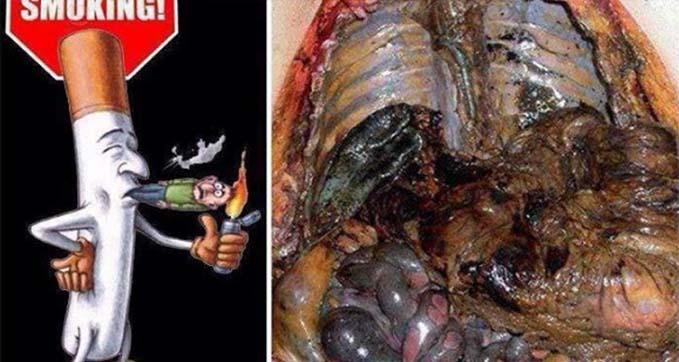 DOHÁNYOSOKNAK KÖTELEZŐ! 3 nap alatt eltávolítja a méreganyagokat a tüdődből. Ne adj esélyt a ráknak!