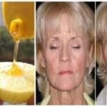 Így használd a mézet és a citromot az arcodon, hogy hamarosan 10 évet letagadhass!