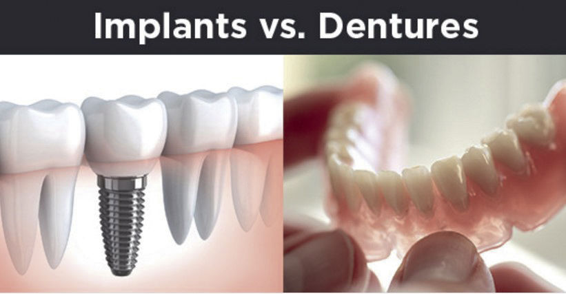Lose the dentures, get the implants tctimes