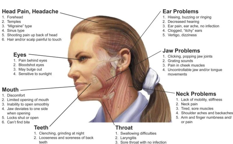 5 Signs Your Headache May Be Caused By Tmj News