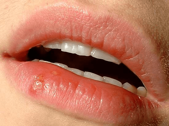 Herpes Or Cyst.what Is It? - 10POINTS? 1