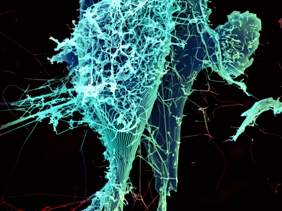 """String-like Ebola virus peeling off an infected cell."" Heinz Feldmann, Peter Jahrling, Elizabeth Fischer and Anita Mora, National Institute of Allergy and Infectious Diseases, National Institutes of Health"