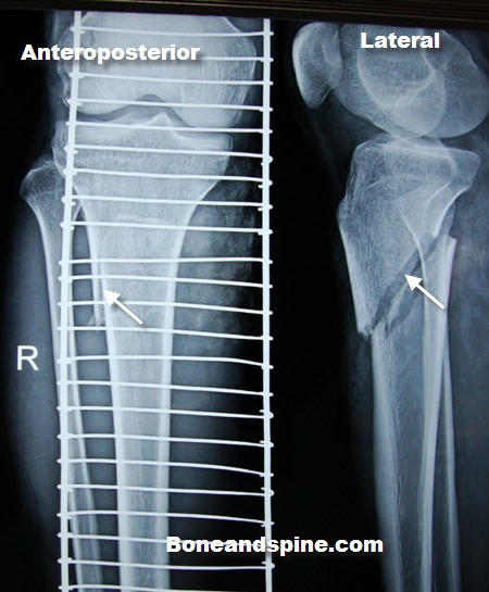 fracture-upper-tibia