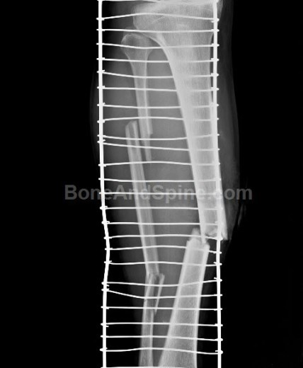 Segmental fracture of fibula with fracture tibia