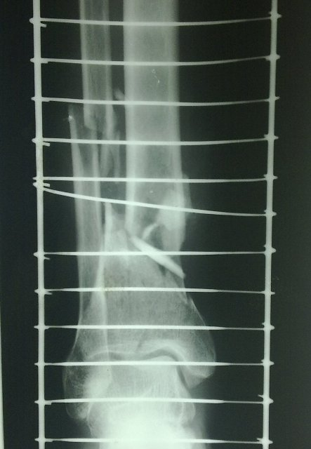fracture-tibia-distal-third-comminuted-fracture fibula