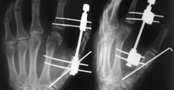 Metacarpal Fracture Xrays