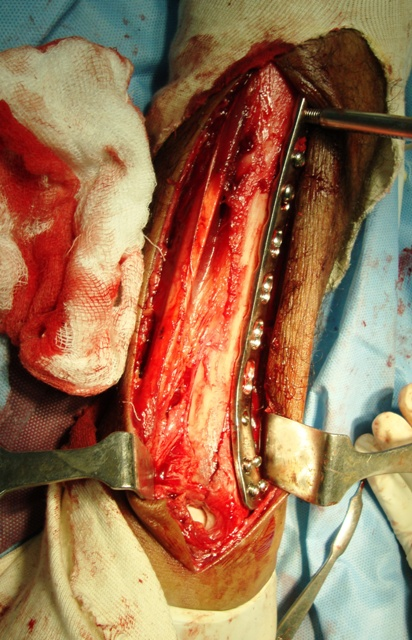 Distal Tibia Plate In Fractures of Distal Tibia