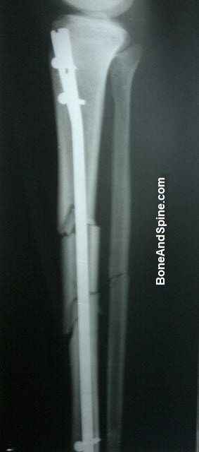 Operated Segmental Fracture Tibia