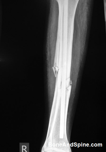 Fracture Tibia with Kuntscher Nail