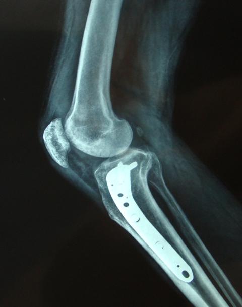 Lateral View of Operated Fracture Tibia