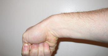 De Quervain Tenosynovitis Symptoms and Treatment