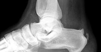 Haglund Deformity – Symptoms and Treatment