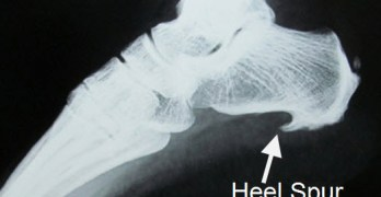 Heel Spur is not Cause of Your Heel Pain – Plantar Fasciitis is