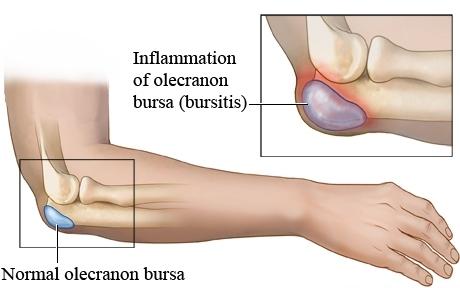Olecranon bursa anatomy