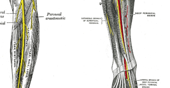 Peroneal Nerve Entrapment