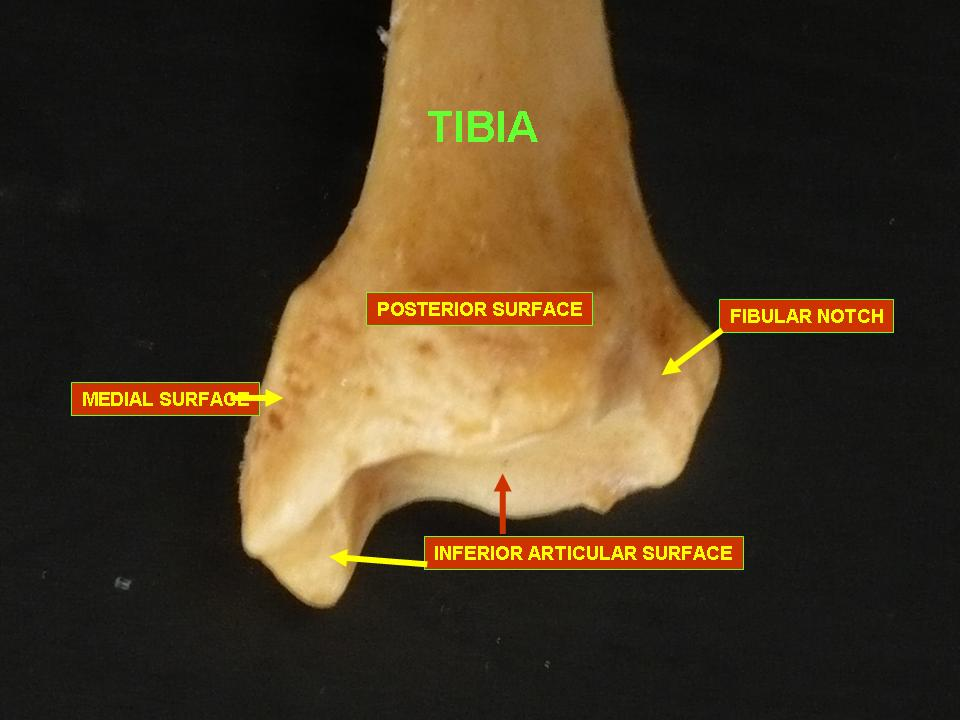 Posterior view of lower end tibiaFibular Notch Of Tibia
