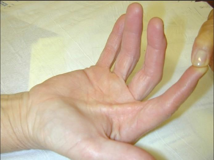 Pulleys Of Hand : Flexor tendon pulley system of hand bone and spine