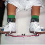 Congenital Talipes Equinovarus or Club Foot