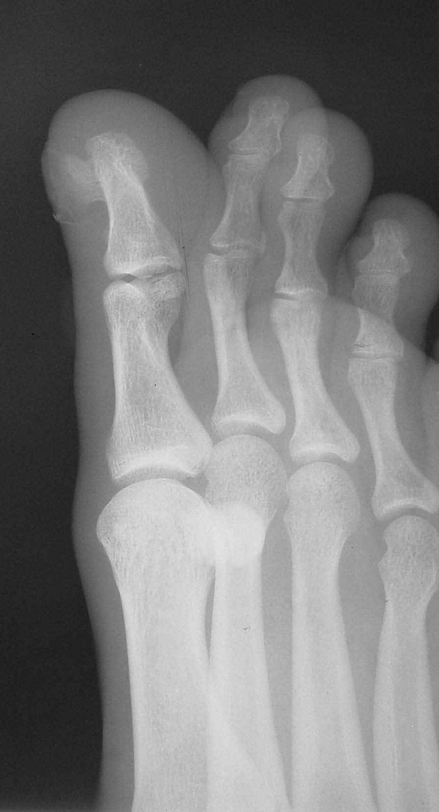 photos foot