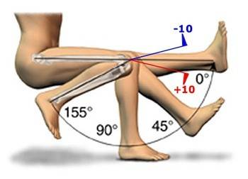 Rom Range Of Motion Information Joint Replacement
