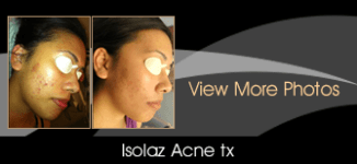 Isolaz acne tx(1)