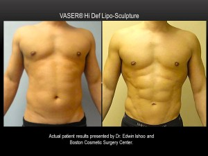 VASER-Hi-Def-2-Boston-Cosmetic-Surgery-