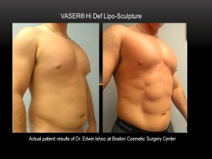 Vaser-Hi-Def-Boston-Cosmetic-Surgery-Edwin-Ishoo-MD-2-
