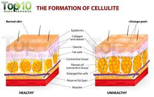 cellulite-copy-opt