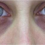 under-eye-circles1-150x150