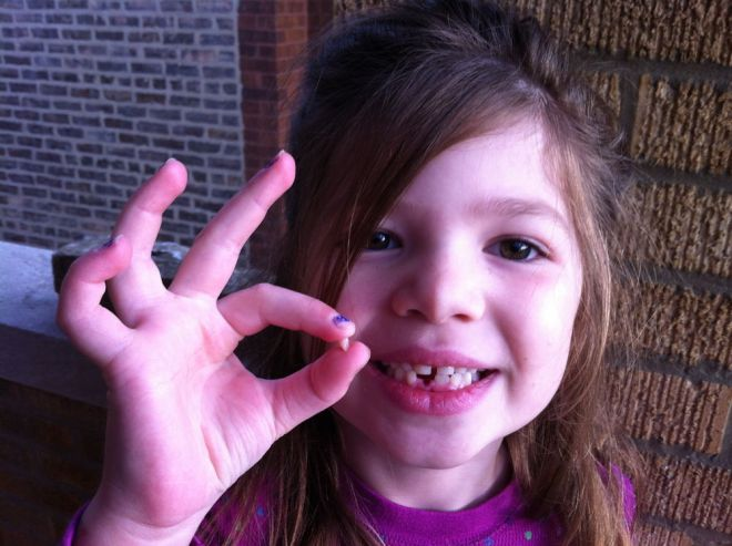 Rosie loses second tooth.