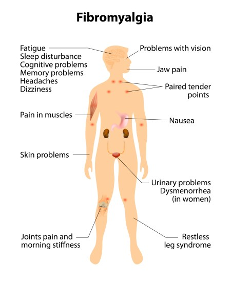 Fibromyalgia Muscle Control