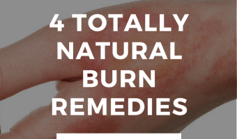 4 Natural Burn Remedies + A DIY Lavaderm Recipe